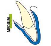 Odontoiatra Ferrara Dentista Ferrara Studio Odontoiatrico Dott. Nicola Mobilio - Prestazione Dentale Professionale