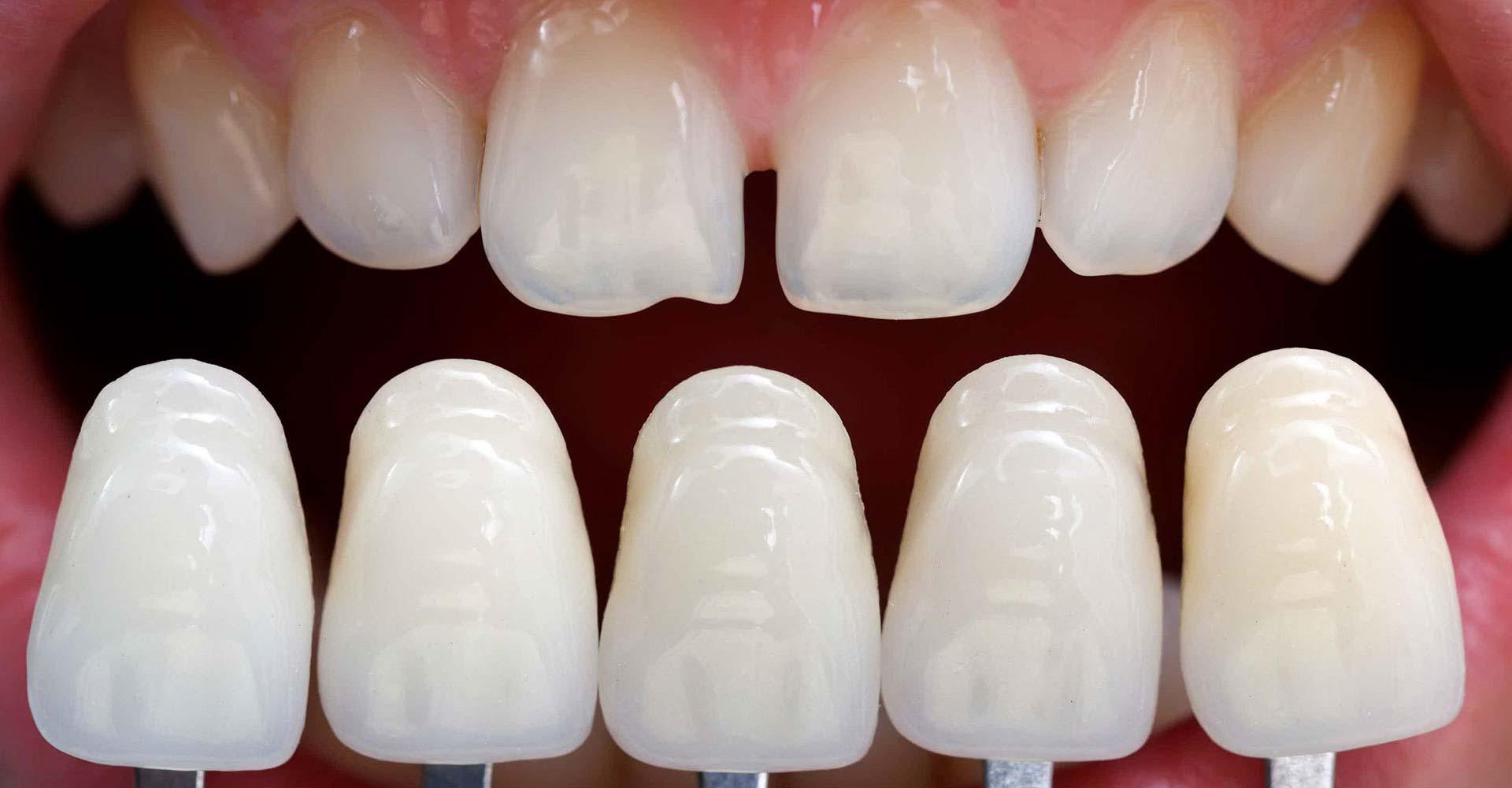Odontoiatra Ferrara Dentista Ferrara Studio Odontoiatrico Dott. Nicola Mobilio Prestazioni - Faccette in Ceramica