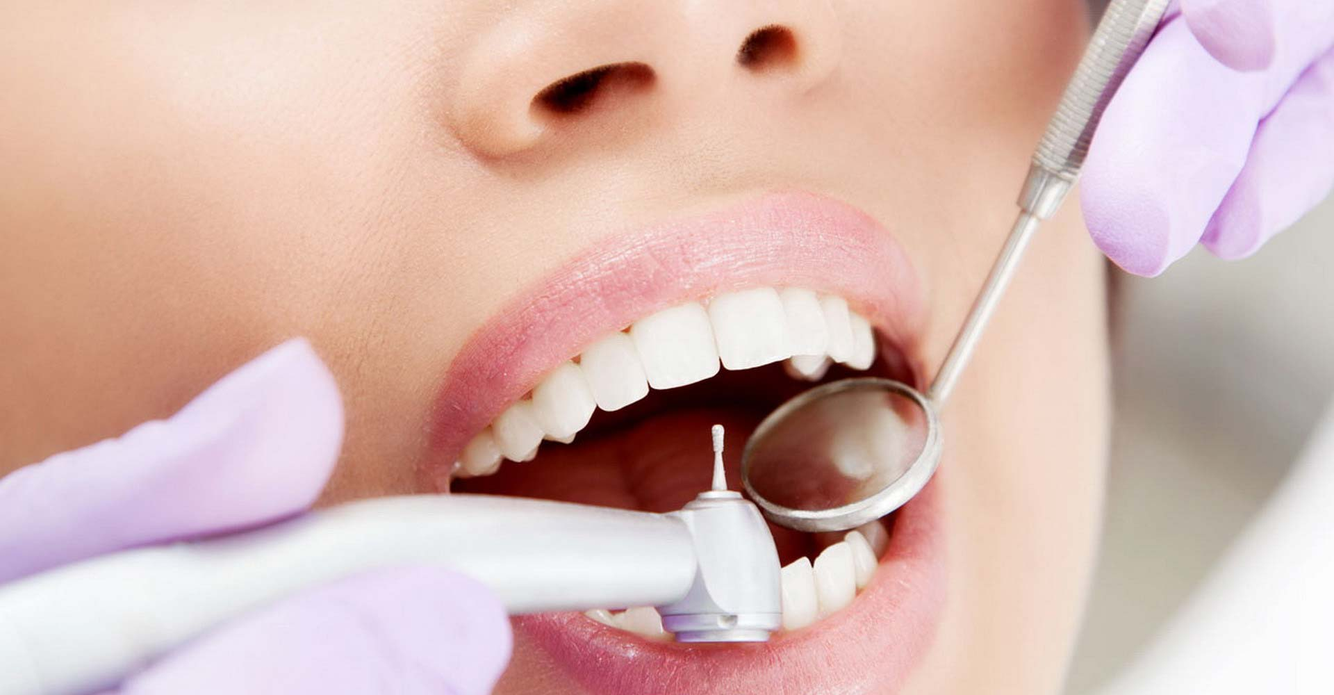 Odontoiatra Ferrara Dentista Ferrara Studio Odontoiatrico Dott. Nicola Mobilio Prestazioni - Odontoiatria Conservativa