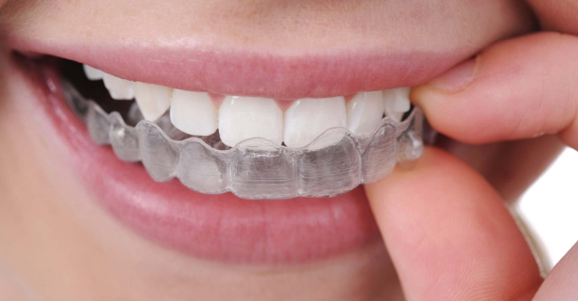 Odontoiatra Ferrara Dentista Ferrara Studio Odontoiatrico Dott. Nicola Mobilio Prestazioni - Ortodonzia invisibile