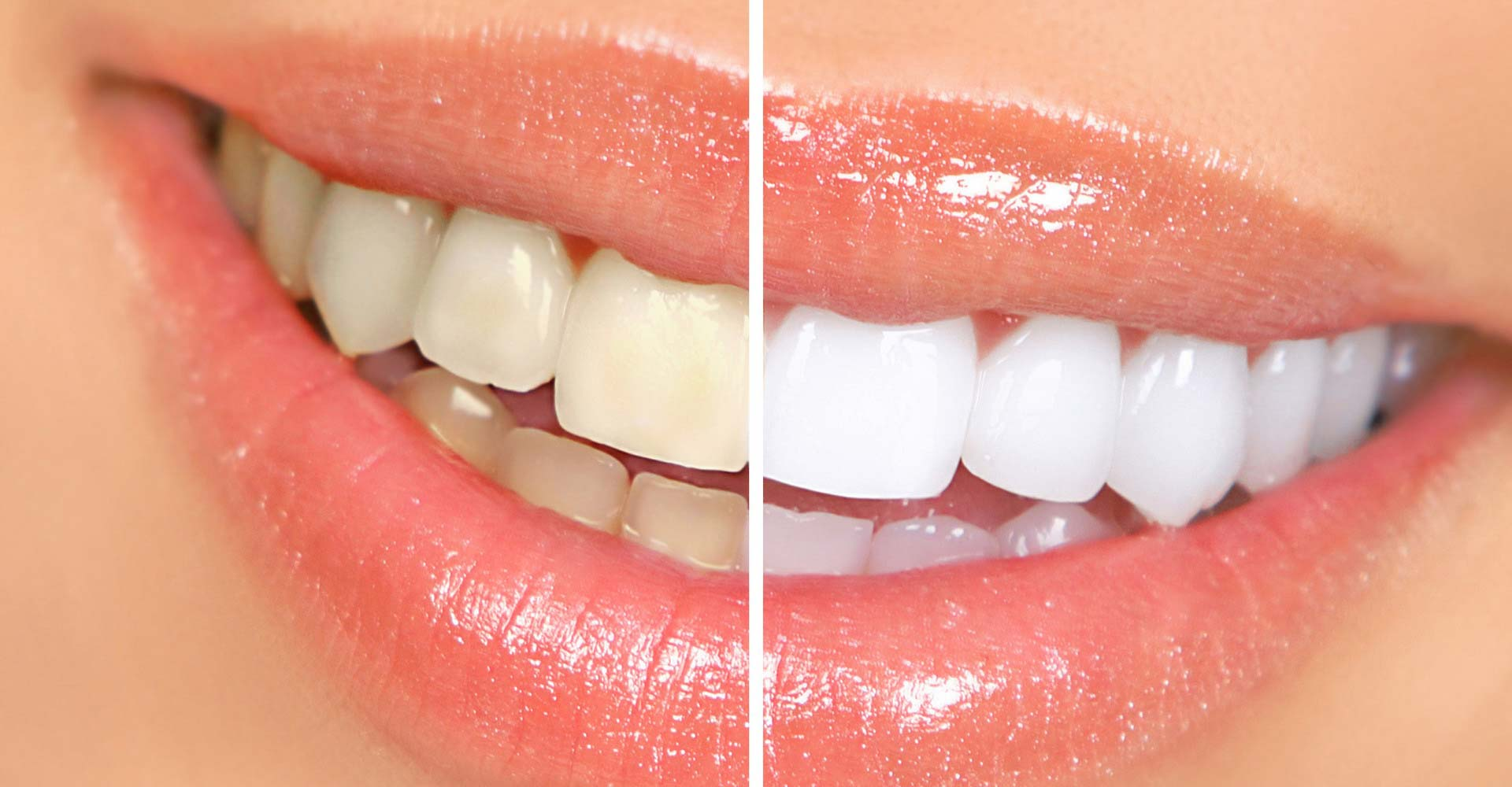 Odontoiatra Ferrara Dentista Ferrara Studio Odontoiatrico Dott. Nicola Mobilio Prestazioni Sbiancamento dei Denti